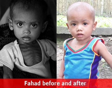 malnourished child before and after